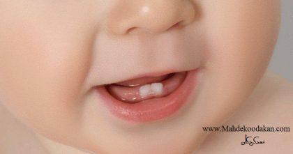 g 420x221 - دندان درآوردن نوزادان: زمان، علائم و نکات بسیار مهم