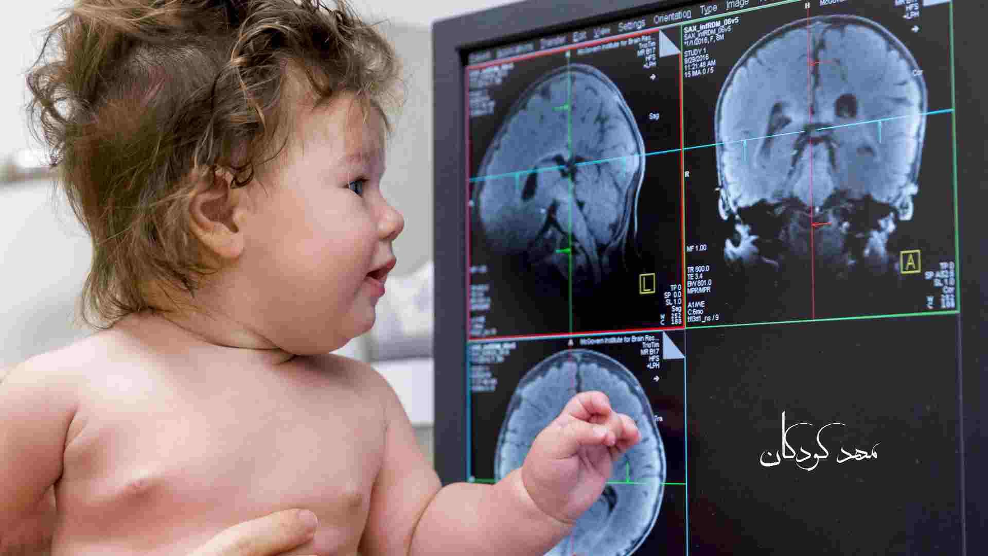 رشد مغز کودکان نوباوه و نوپا