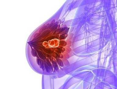 التهاب نوک پستان در دوران شیردهی
